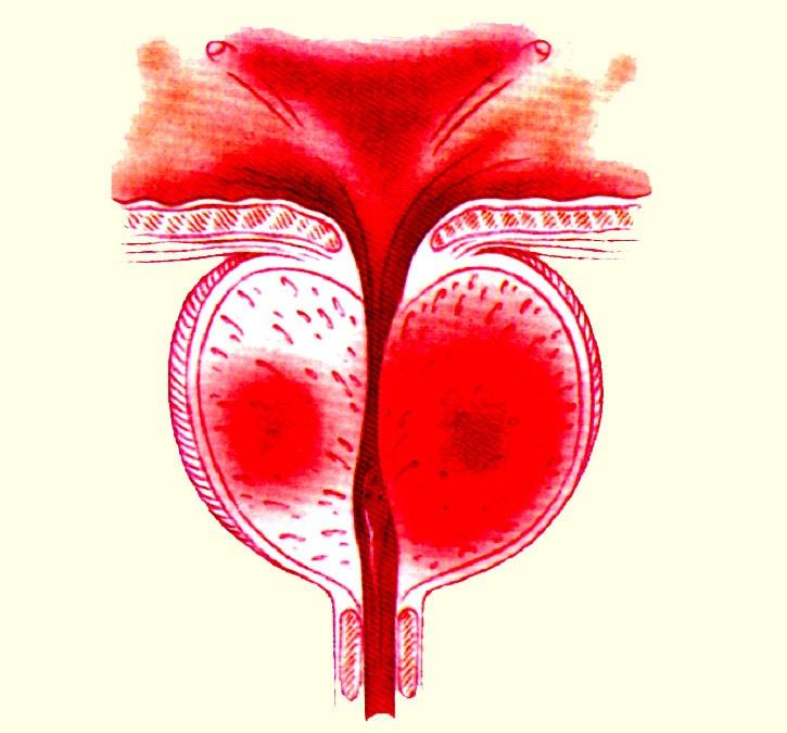 Хронический конгестивный простатита как можно лечить простатита в домашних условиях