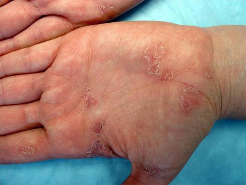 Сифилис у женщин - как и через какое время он проявляется, первые признаки, возможно ли лечение