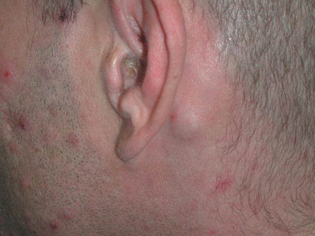 проявление за ухом