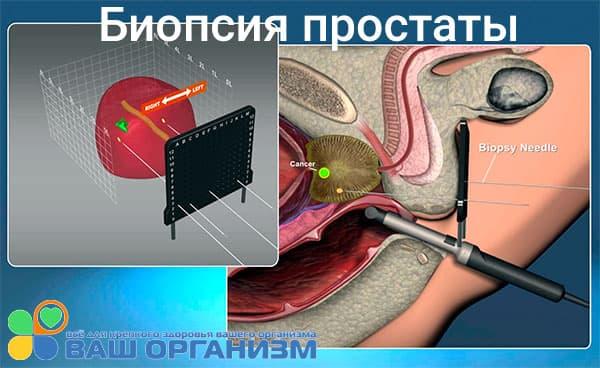 Биопсия ткани простаты