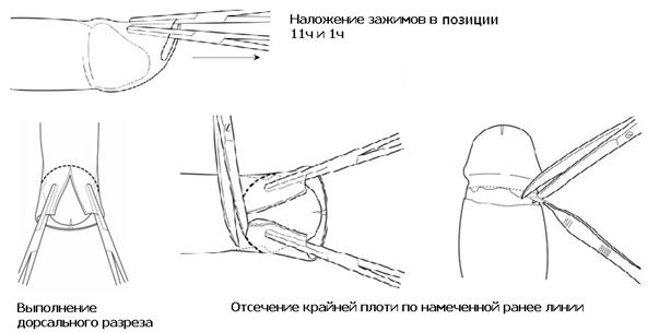 Метод Mogen