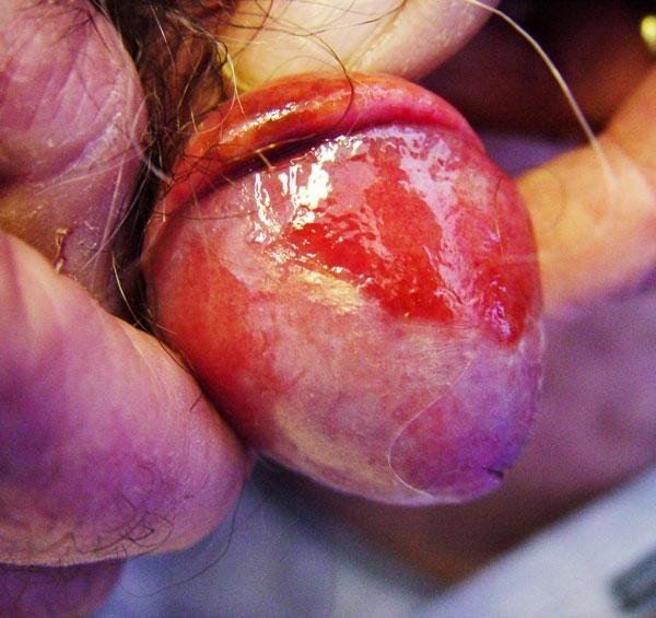 Сыпь на члене у мужчин причины симптомы и лечение в домашних условиях