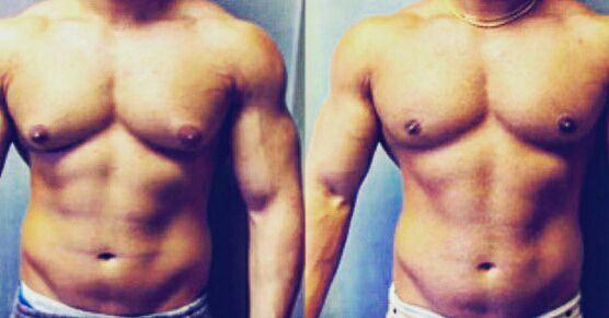 Как лечить гинекомастию у мужчин