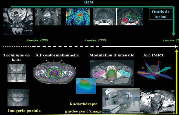 лучевая терапия МРТ