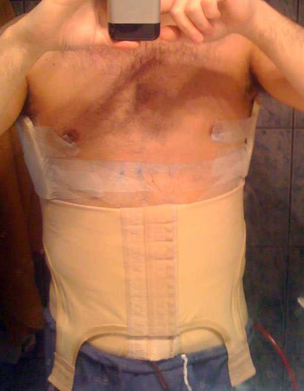 после-операции