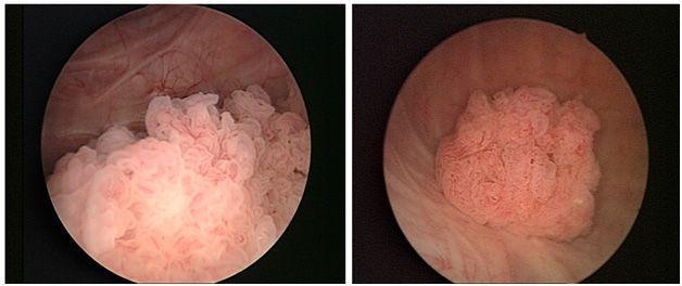 рак мочевого пузыря признаки