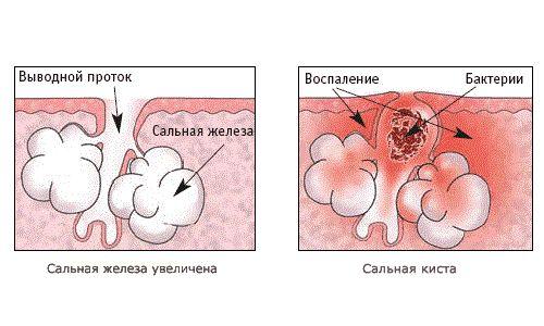 сальная железа