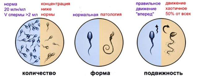 патология в семени