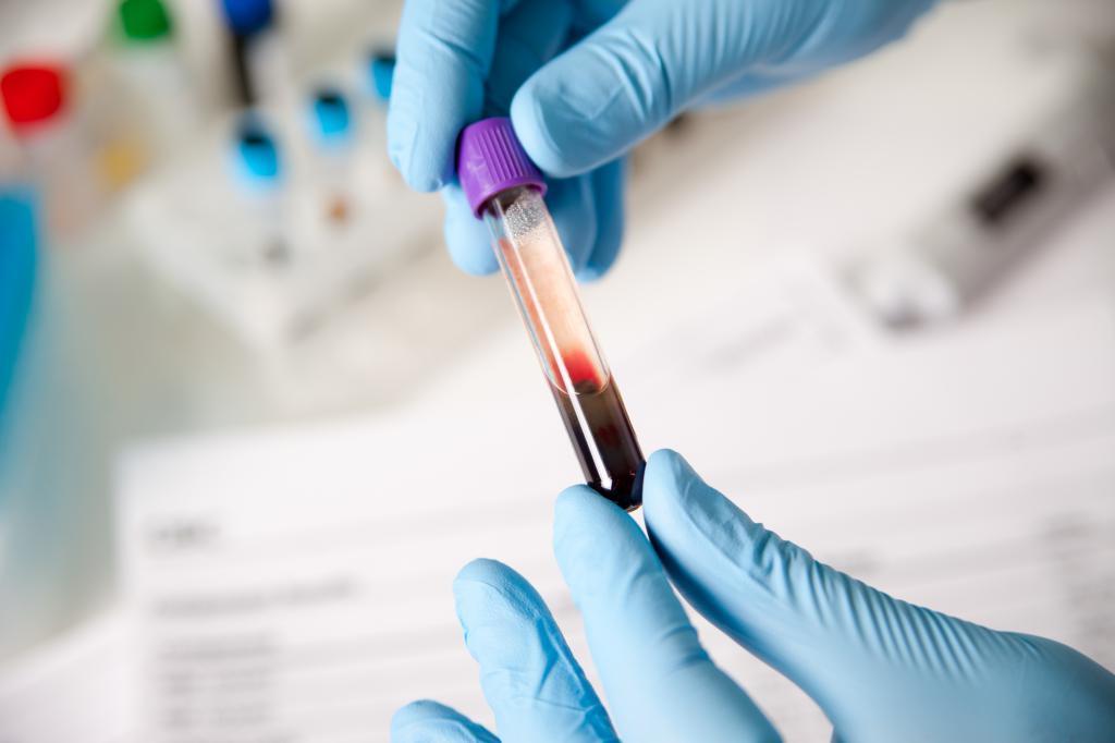 Анализ крови на псу 12