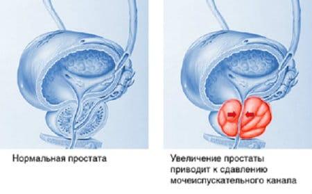 Резкая боль в левом паху у женщин. Причины боли слева в паху у женщин. Что делать при появлении боли. Лечение болей в паху