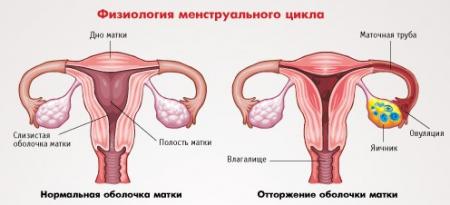 менструальные кровотечения
