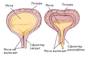 переполнение мочевого пузыря