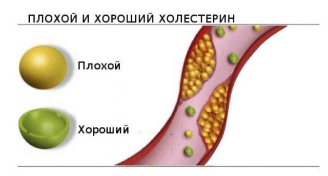 вред и польза холестерина