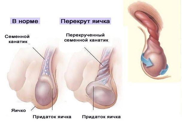 Киста яичка у мужчины