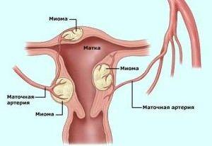 Выбор мазей для лечения молочницы у мужчин
