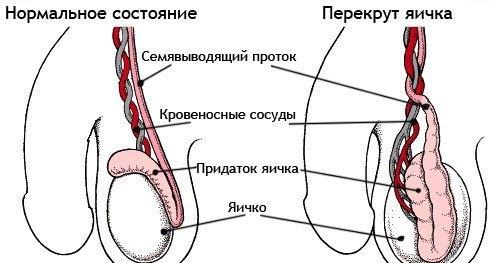 perekrut-yaichka-posle-udara-v-pah