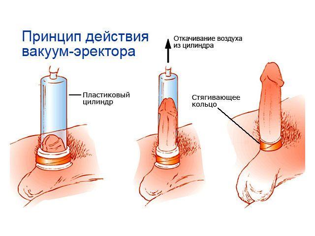 Инструкция использования