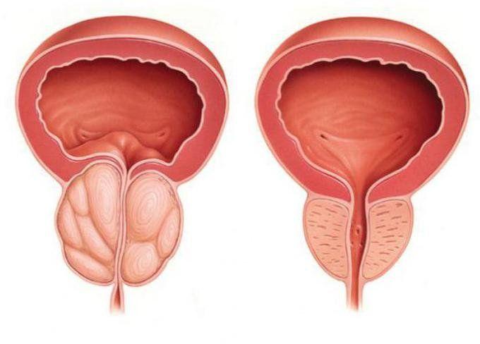 воспаленная и обычная простата