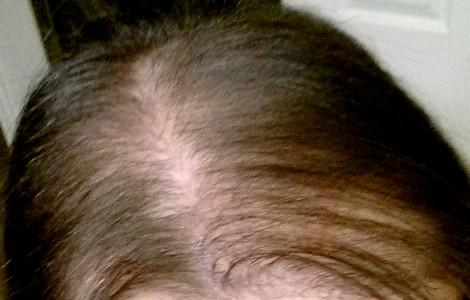 На голове появились проплешины и выпали волосы