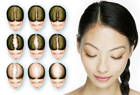 Почему очень сильно выпадают волосы на голове