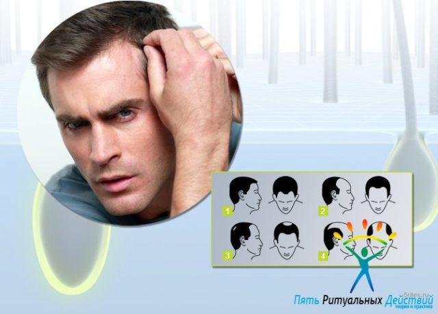 Как защитить волосы от выпадения мужчине