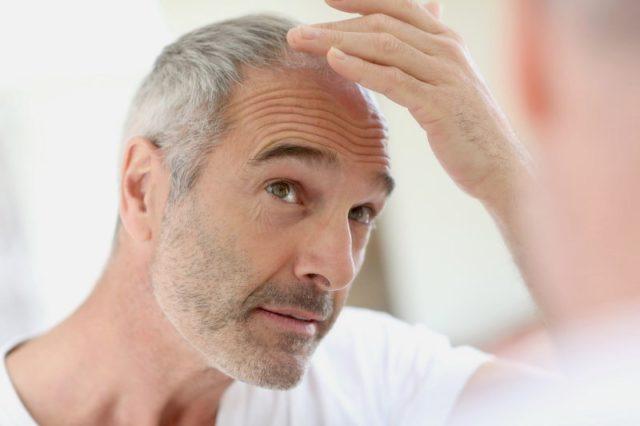 Выпадение волос на теле у мужчин причины