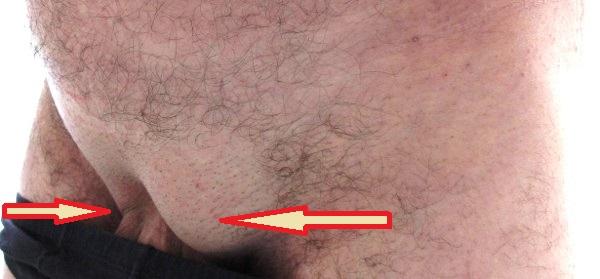 Опухоль с правой стороны паха у мужчин