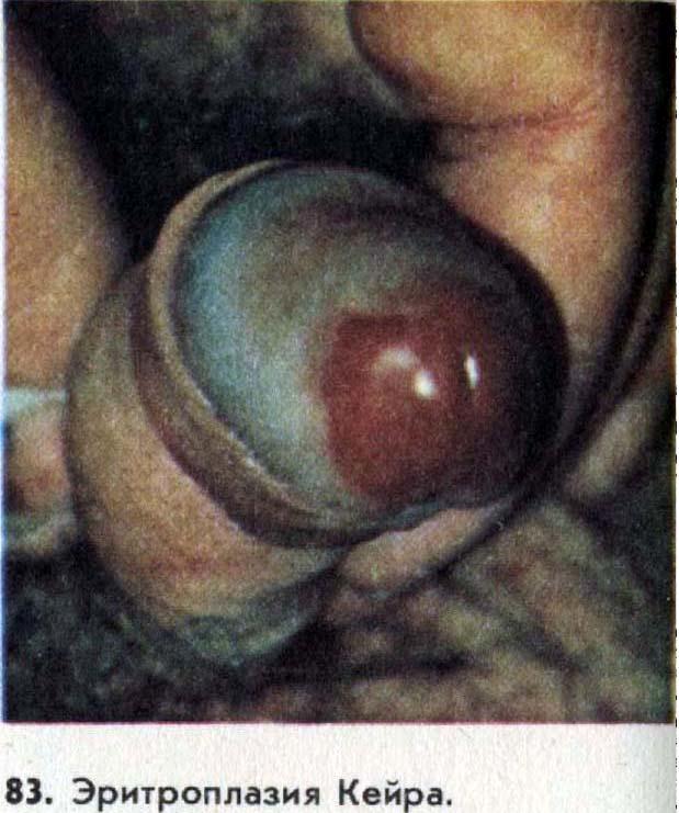 Что представляет собой эритроплазия кейра?