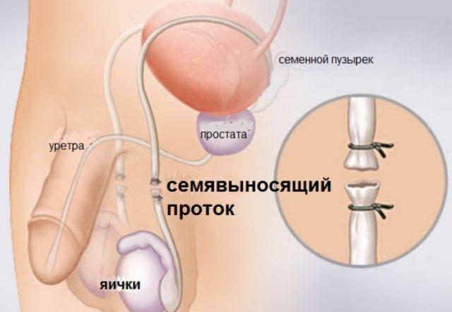 Хирургическая стерилизация женщин и мужчин