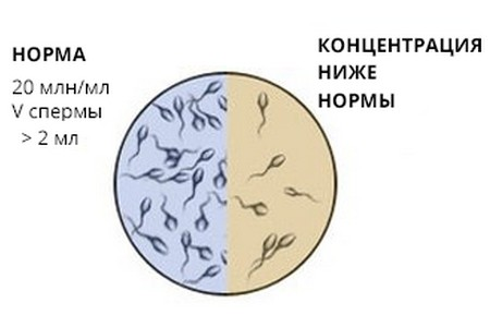 Можно ли лечить подвижность спермы