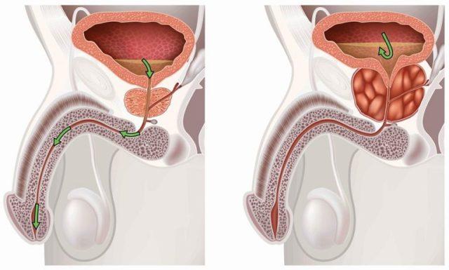 Комплексное лечение простатита в домашних условиях