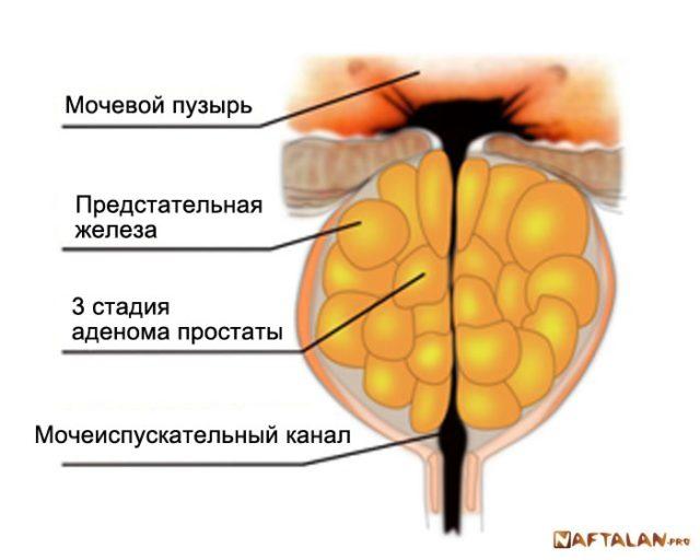 Лечение простатита в России цены клиник отзывы