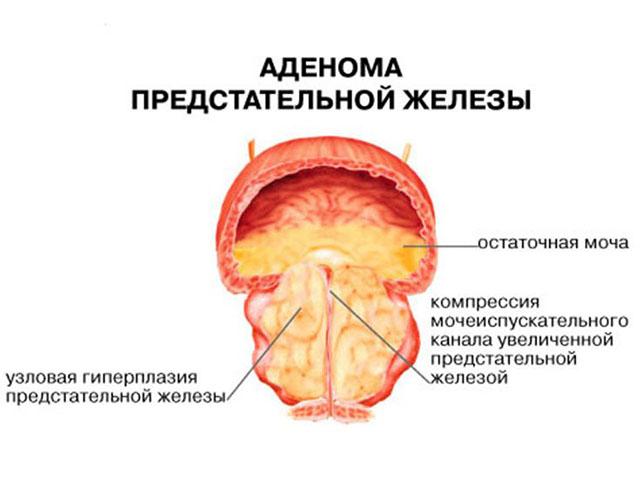 Какие должны быть размеры предстательной железы