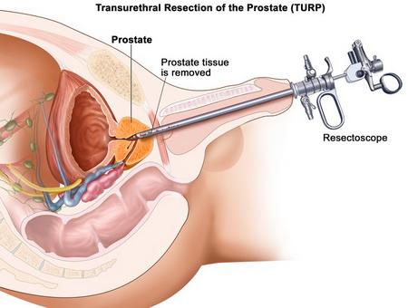 Пункционное лечение кисты предстательной железы