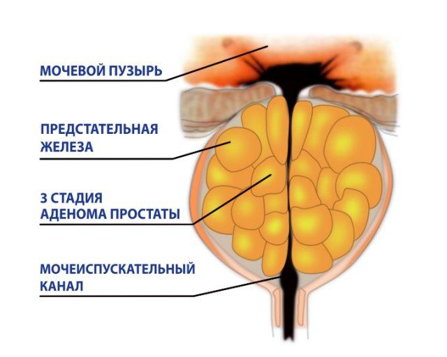 Киста маточки предстательной железы