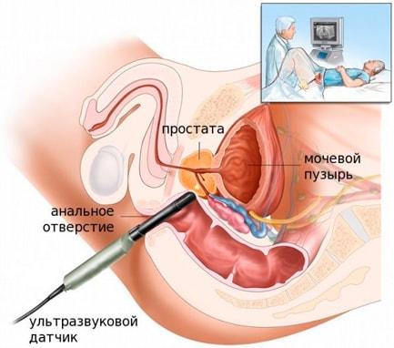 Аппарат СА для лечения простатита при помощи вакуума