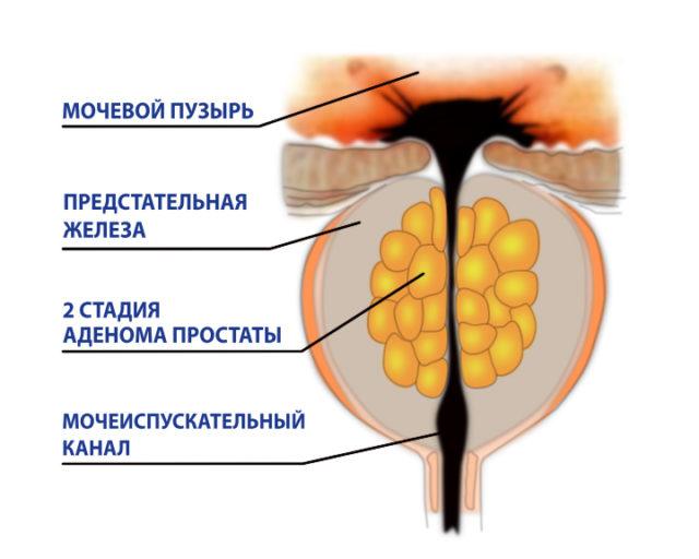 Что такое в урологии болезнь дгпж