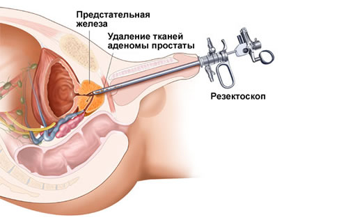 Медицинский лазер для лечения простатита народное средство лечение простатита у мужчин в домашних условиях