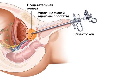 Народные средства от простатита у мужчин