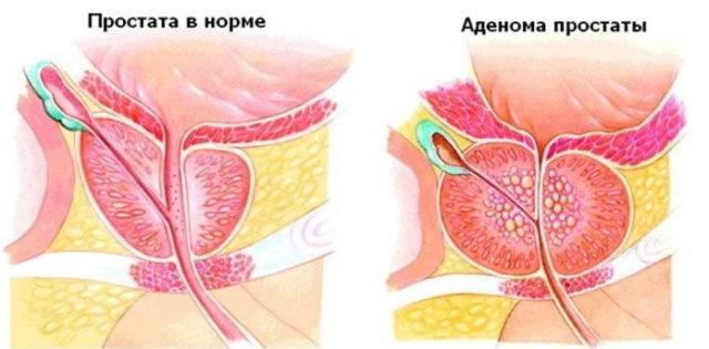 Чем лечить аденому простаты у мужчин медикаментозно