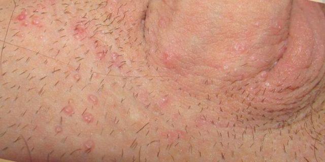 Высыпания в области паха у мужчин