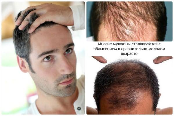 Можно ли остановить выпадение волос у мужчин