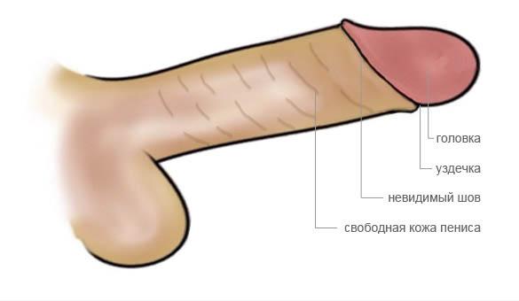 Обрезание у мужчин: стоит ли делать?