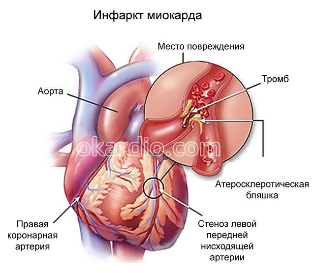 Симптомы инфаркта миокарда у детей