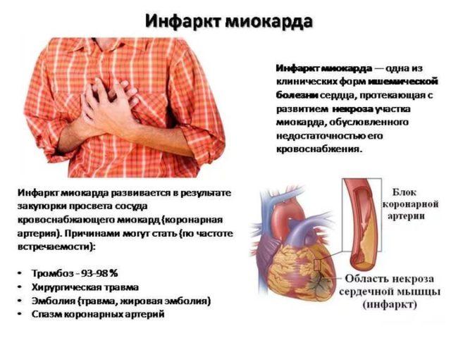 Микроинфаркт симптомы первые признаки у мужчин