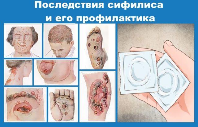 Основные признаки венерических заболеваний
