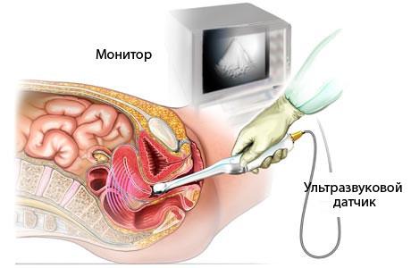 УЗИ малого таза у мужчин: подготовка, что входит в процедуру, как делают