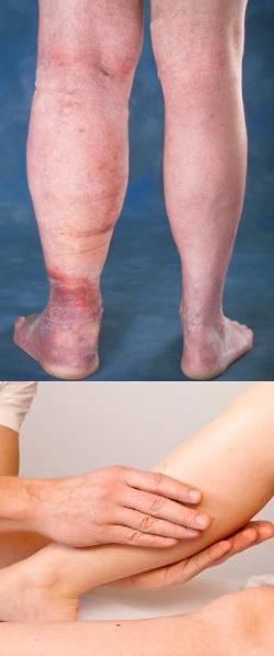 Почему отекают ноги в щиколотках у мужчин после 50 лет?