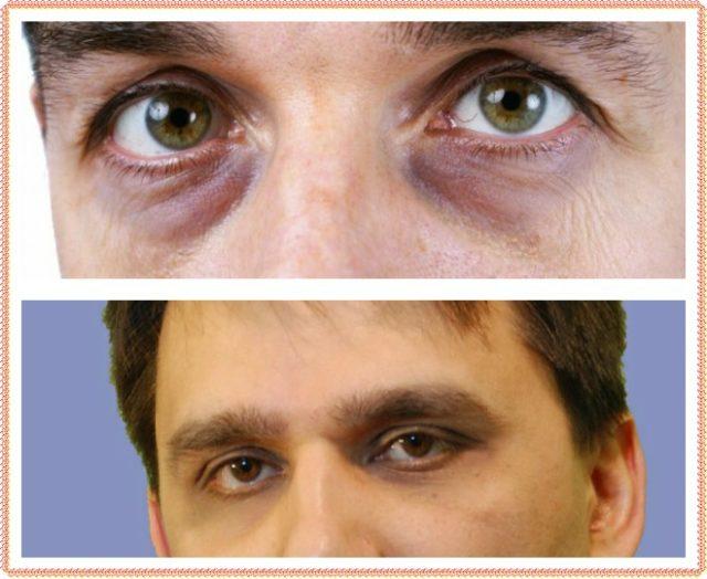 Почему под глазами синие мешки. Мешки под глазами у мужчин — причины и лечение патологии. Черные мешки под глазами у мужчин