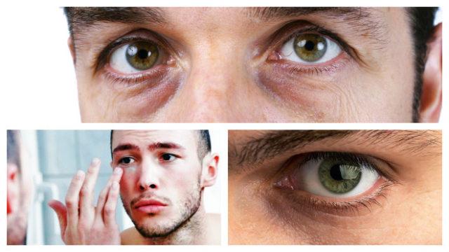 Мешки под глазами у мужчин как избавится